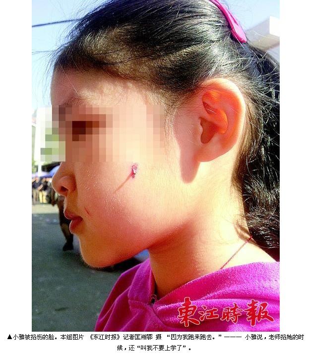 幼儿园老师掐伤小女孩脸蛋